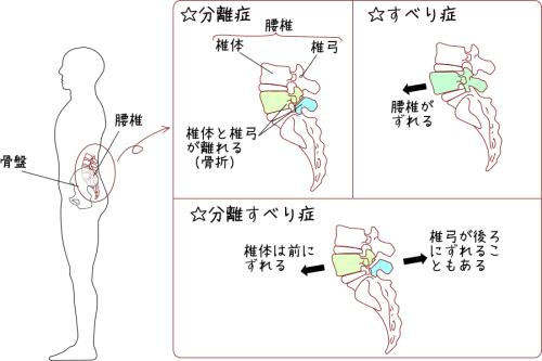 腰椎分離症・すべり症の図