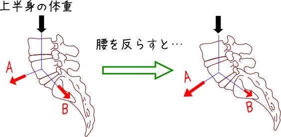 分離症・すべり症の原因説明図